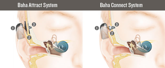 Cochlear-Implant-in-Sri-Lanka
