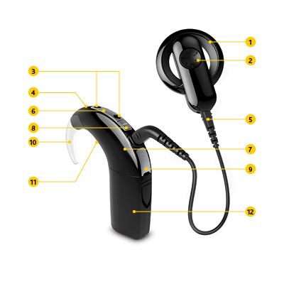 Cochlear-Sri-Lanka-Cochlear-1